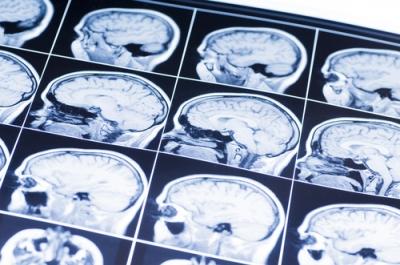 Dallas County Jury Awards $20 million in Fatal Brain Damage Case